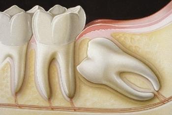dente-del-giudizio