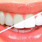 Sbiancamento-denti-dentista-aosta-saint-pierre-estetica-2_2_2_sbiancamento-professionale-1